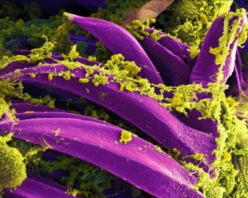 Célula eucariota y célula procariota
